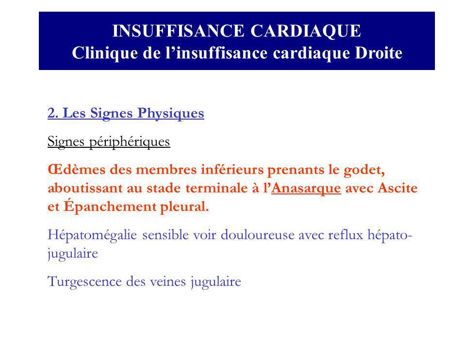 INSUFFISANCE CARDIAQUE Clinique de linsuffisance cardiaque Droite 2. Les Signes Physiques Signes périphériques Œdèmes des membres inférieurs prenants