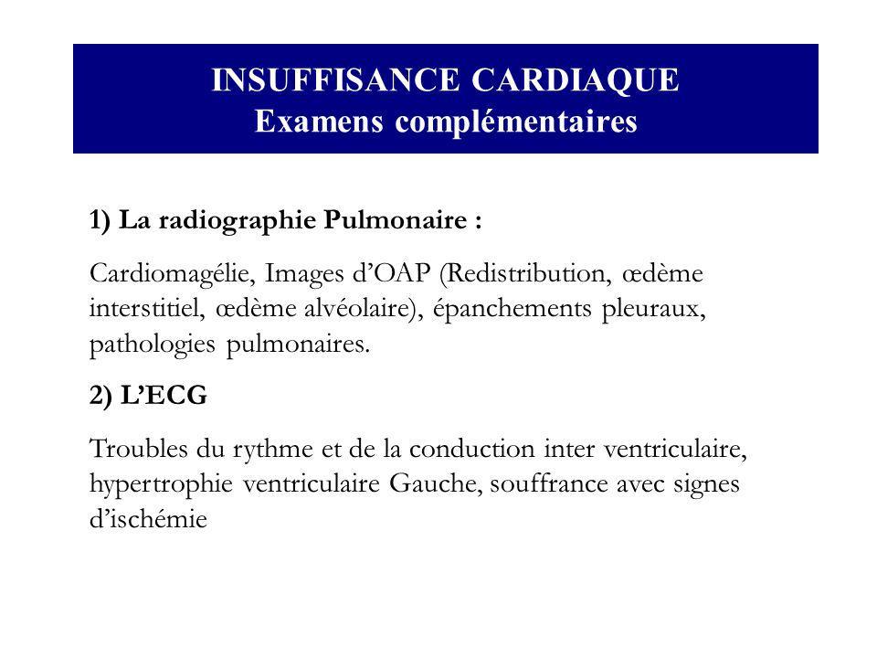 INSUFFISANCE CARDIAQUE Examens complémentaires 1) La radiographie Pulmonaire : Cardiomagélie, Images dOAP (Redistribution, œdème interstitiel, œdème a