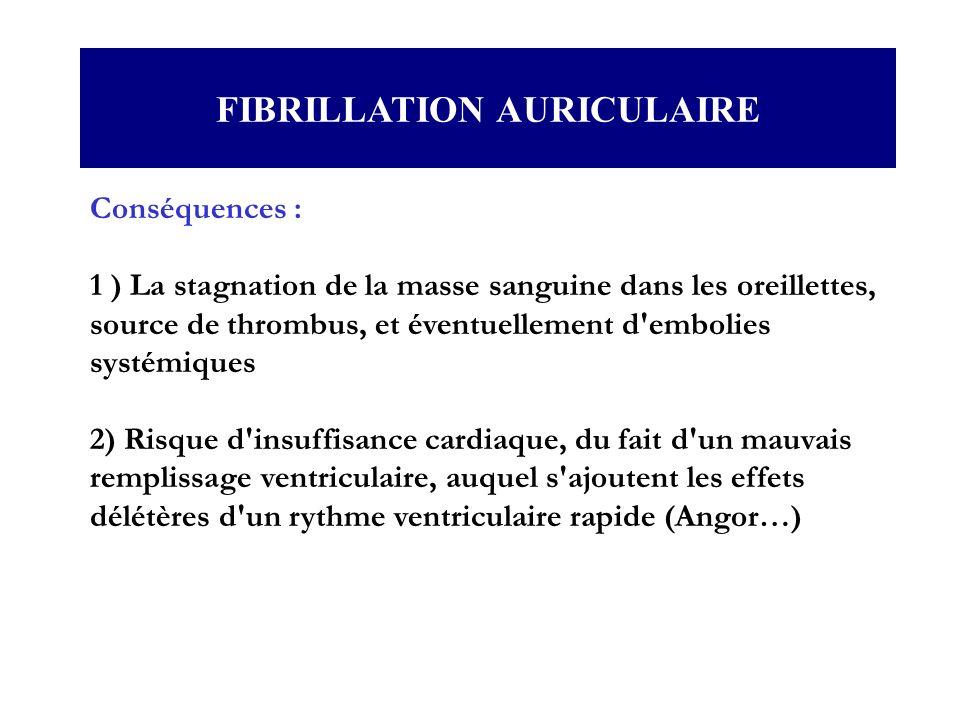 FIBRILLATION AURICULAIRE Conséquences : 1 ) La stagnation de la masse sanguine dans les oreillettes, source de thrombus, et éventuellement d'embolies