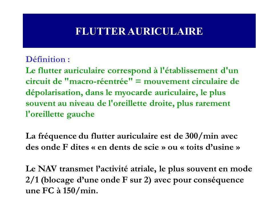 Définition : Le flutter auriculaire correspond à l'établissement d'un circuit de