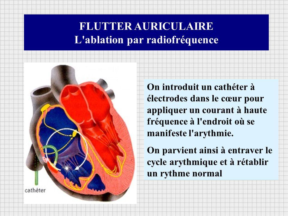 FLUTTER AURICULAIRE L'ablation par radiofréquence On introduit un cathéter à électrodes dans le cœur pour appliquer un courant à haute fréquence à l'e