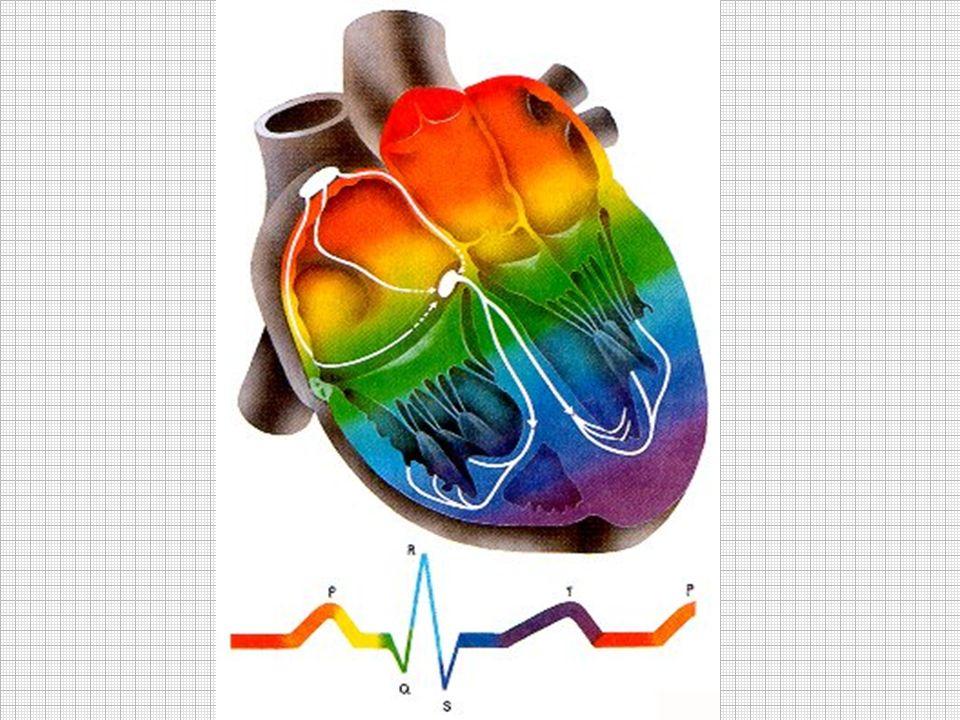 C est la plus grave de toutes les arythmies car elle entraîne un arrêt cardiocirculatoire immédiat avec anoxie cérébrale.