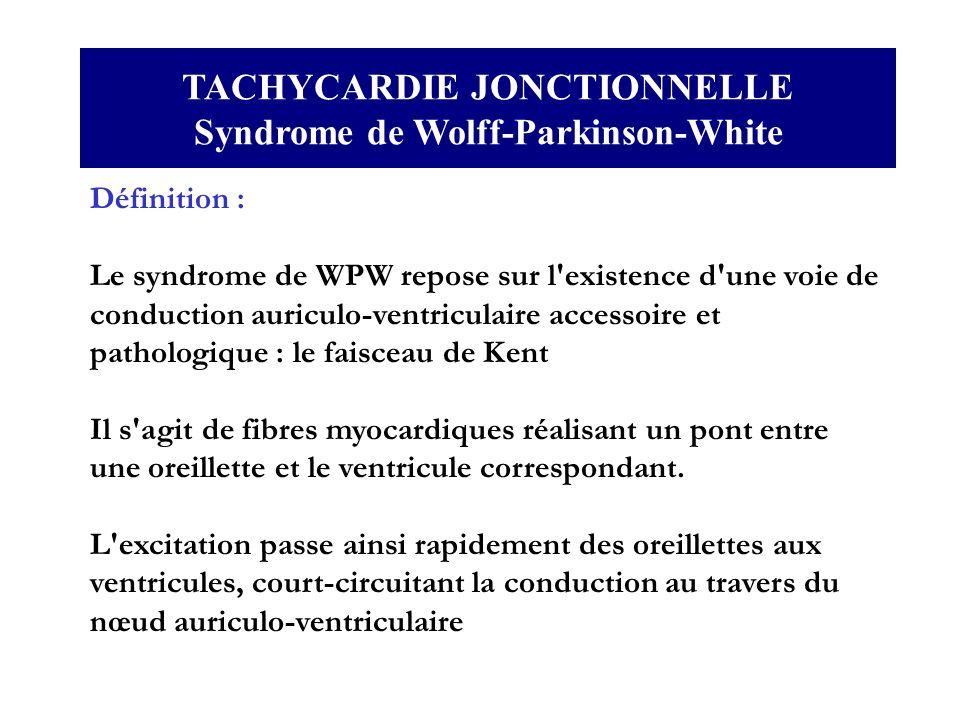 TACHYCARDIE JONCTIONNELLE Syndrome de Wolff-Parkinson-White Définition : Le syndrome de WPW repose sur l'existence d'une voie de conduction auriculo-v