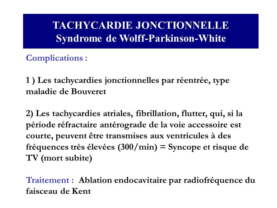 TACHYCARDIE JONCTIONNELLE Syndrome de Wolff-Parkinson-White Complications : 1 ) Les tachycardies jonctionnelles par réentrée, type maladie de Bouveret