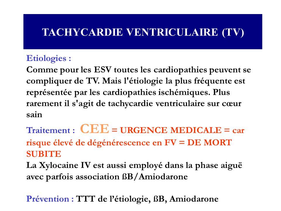 Etiologies : Comme pour les ESV toutes les cardiopathies peuvent se compliquer de TV. Mais l'étiologie la plus fréquente est représentée par les cardi
