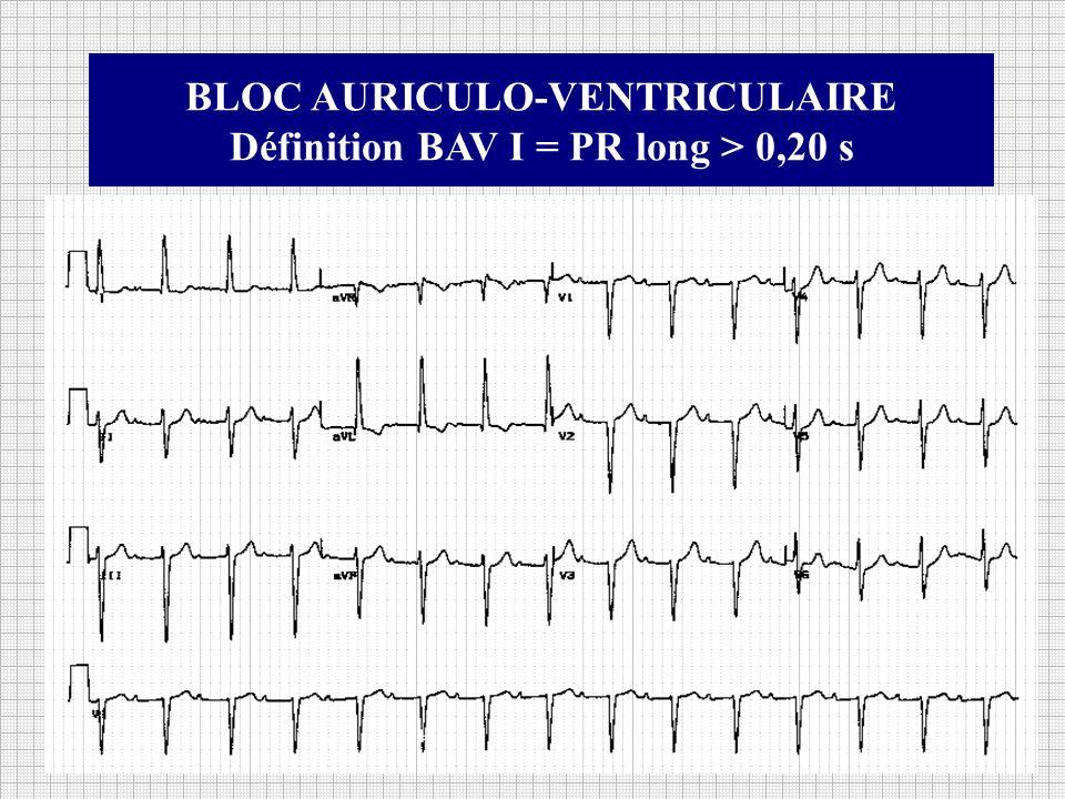 BLOC AURICULO-VENTRICULAIRE Définition BAV I = PR long > 0,20 s