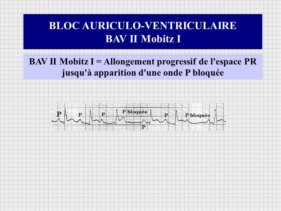 BLOC AURICULO-VENTRICULAIRE BAV II Mobitz I BAV II Mobitz I = Allongement progressif de l'espace PR jusqu'à apparition d'une onde P bloquée