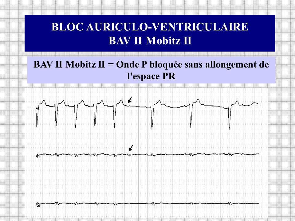 BLOC AURICULO-VENTRICULAIRE BAV II Mobitz II BAV II Mobitz II = Onde P bloquée sans allongement de l'espace PR