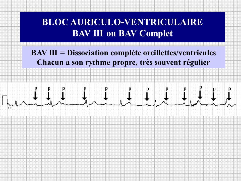 BLOC AURICULO-VENTRICULAIRE BAV III ou BAV Complet BAV III = Dissociation complète oreillettes/ventricules Chacun a son rythme propre, très souvent ré