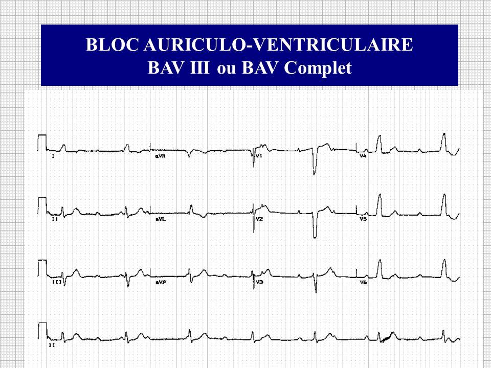 BLOC AURICULO-VENTRICULAIRE BAV III ou BAV Complet