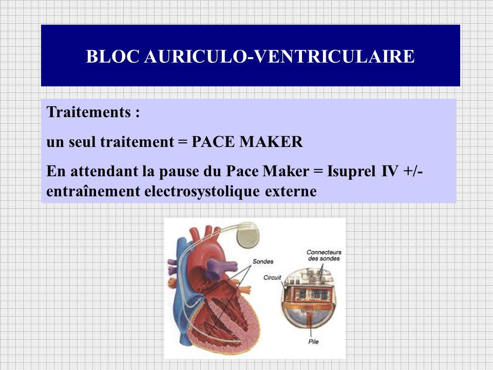 BLOC AURICULO-VENTRICULAIRE Traitements : un seul traitement = PACE MAKER En attendant la pause du Pace Maker = Isuprel IV +/- entraînement electrosys