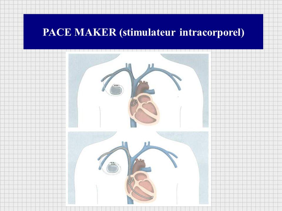 PACE MAKER (stimulateur intracorporel)