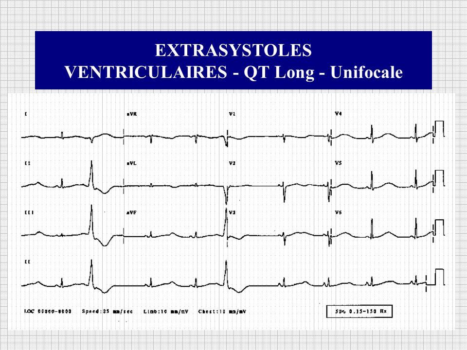 EXTRASYSTOLES VENTRICULAIRES - QT Long - Unifocale