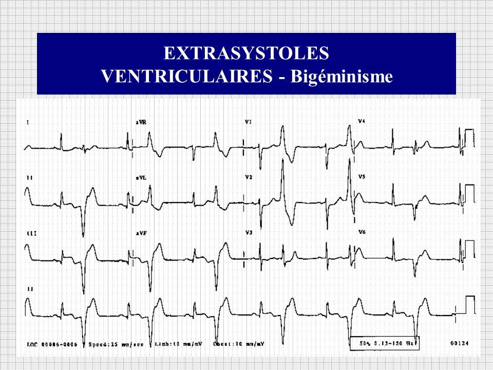 EXTRASYSTOLES VENTRICULAIRES (ESV) Définition : Il s agit d un trouble du rythme très fréquent, très souvent asymptomatique, souvent bénin, mais parfois marqueur d un risque de tachycardie soutenue Les extrasystoles ventriculaires (ESV) sur cœur sain, sauf exception, sont habituellement bénigne.