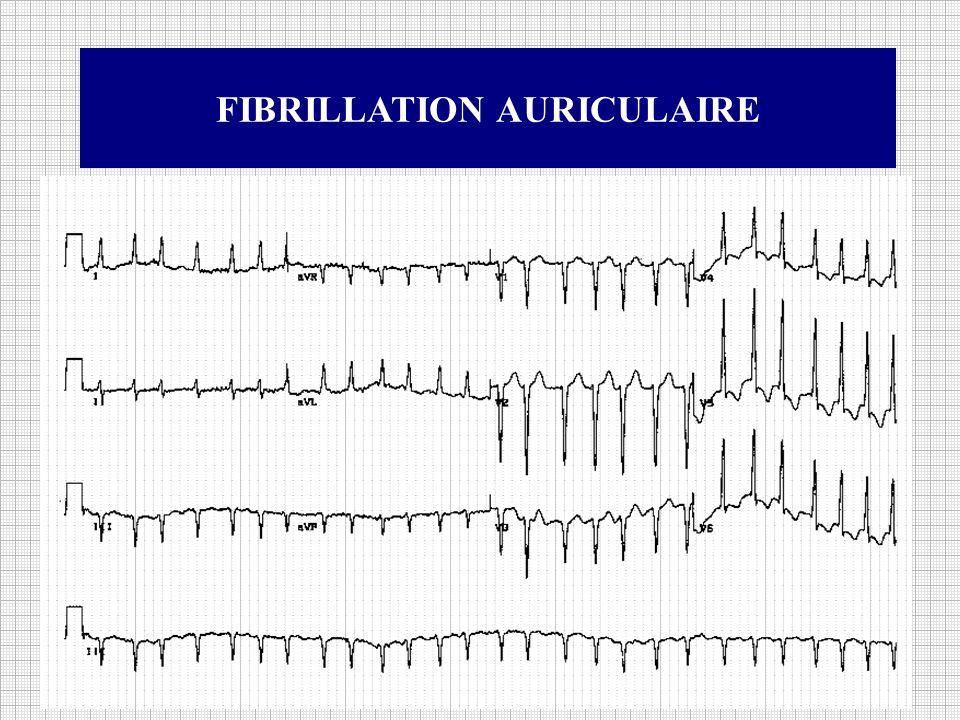 Définition : La fibrillation auriculaire est de loin le trouble du rythme cardiaque le plus fréquent.