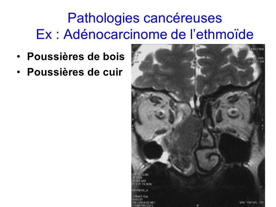 Pathologies cancéreuses Ex : Adénocarcinome de lethmoïde Poussières de bois Poussières de cuir