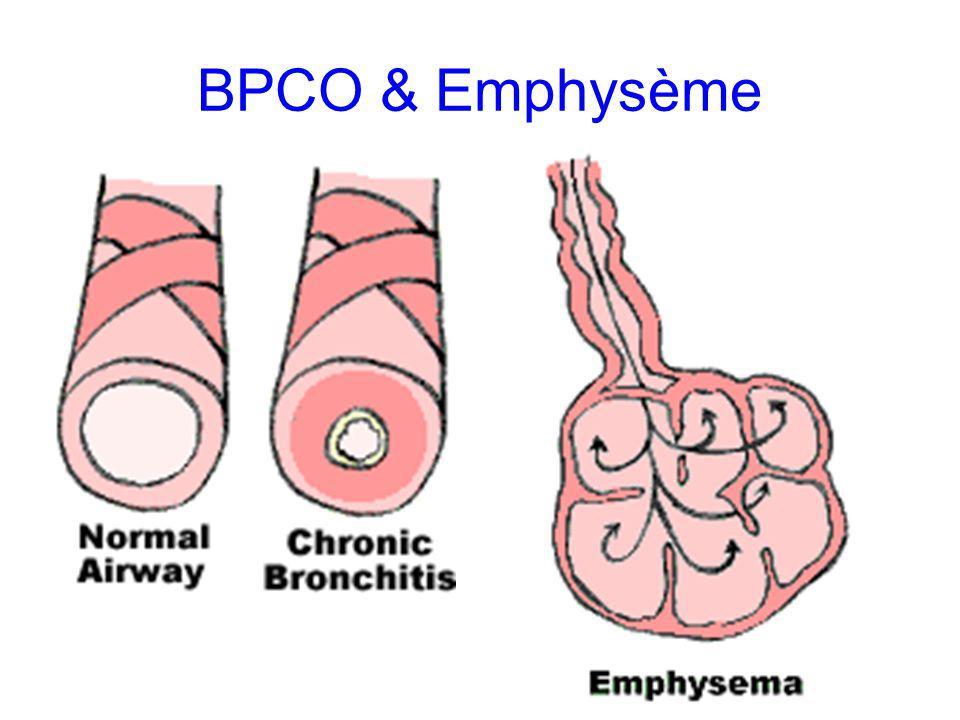 BPCO & Emphysème