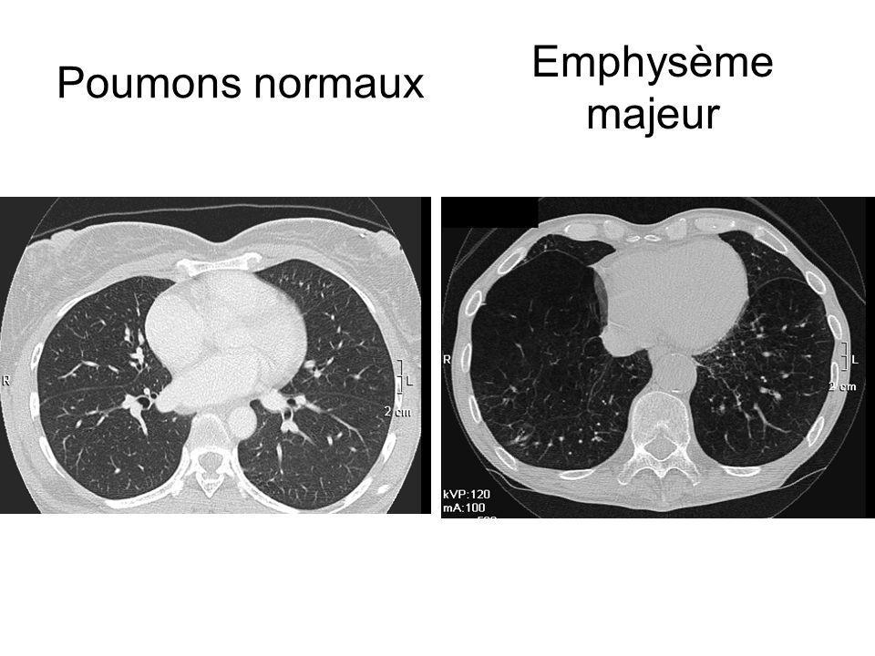 Poumons normaux Emphysème majeur