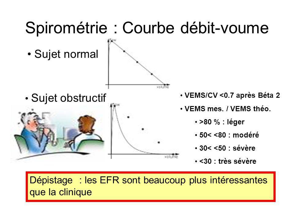Spirométrie : Courbe débit-voume Sujet normal Sujet obstructif VEMS/CV <0.7 après Béta 2 VEMS mes. / VEMS théo. >80 % : léger 50< <80 : modéré 30< <50