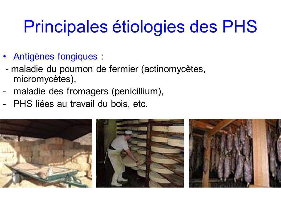 Principales étiologies des PHS Antigènes fongiques : - maladie du poumon de fermier (actinomycètes, micromycètes), -maladie des fromagers (penicillium