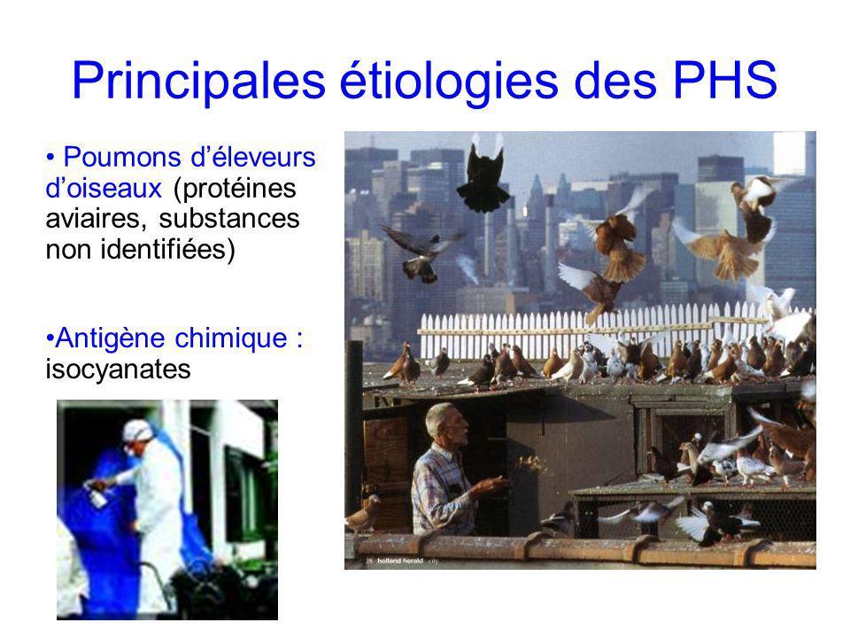 Principales étiologies des PHS Poumons déleveurs doiseaux (protéines aviaires, substances non identifiées) Antigène chimique : isocyanates