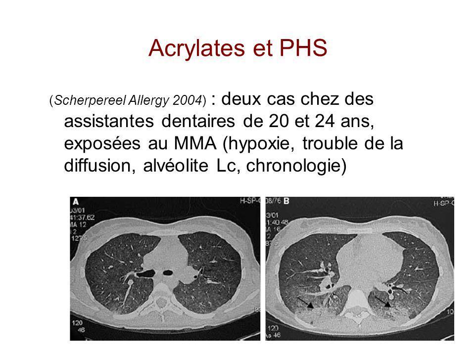 (Scherpereel Allergy 2004) : deux cas chez des assistantes dentaires de 20 et 24 ans, exposées au MMA (hypoxie, trouble de la diffusion, alvéolite Lc,