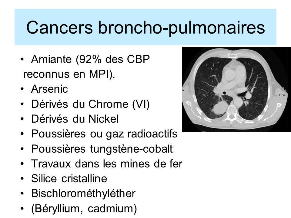 Cancers broncho-pulmonaires Amiante (92% des CBP reconnus en MPI). Arsenic Dérivés du Chrome (VI) Dérivés du Nickel Poussières ou gaz radioactifs Pous