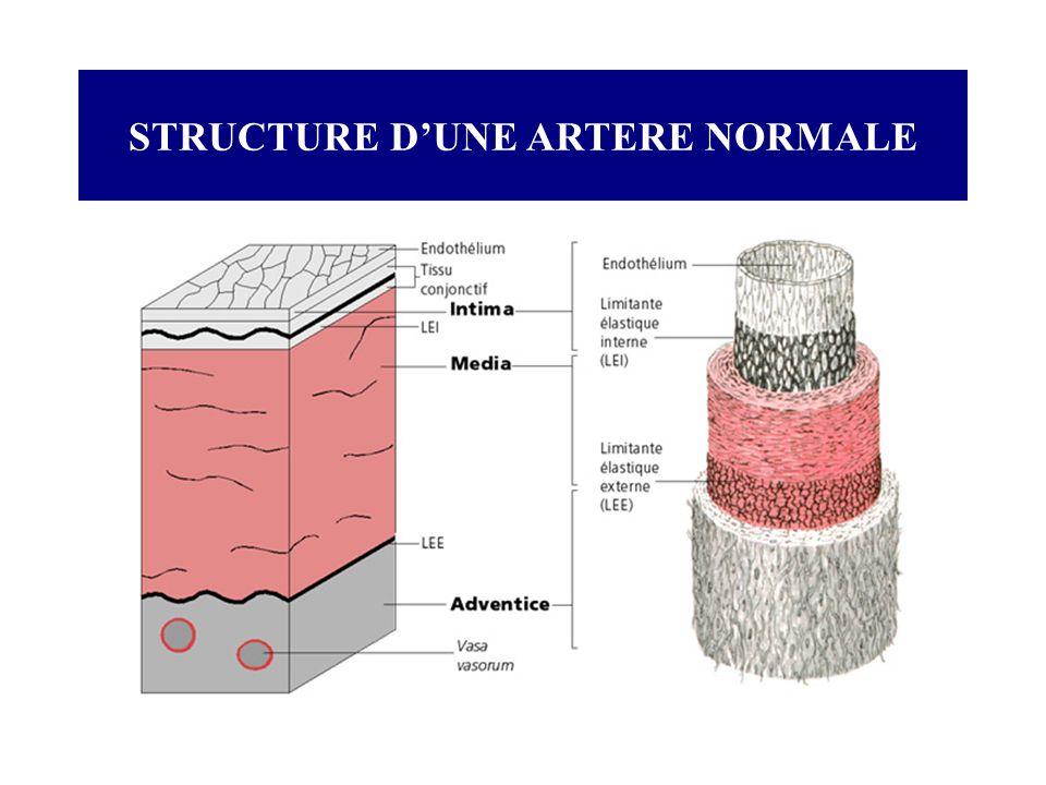 LINFARCTUS DU MYOCARDE Traitements : Les Héparines HEPARINE : 200 à 300 mg/24h/PSE Mode daction : Inhibition de la thromboplastine: empêche la transformation de la prothrombine en thrombine (anti-IIa).
