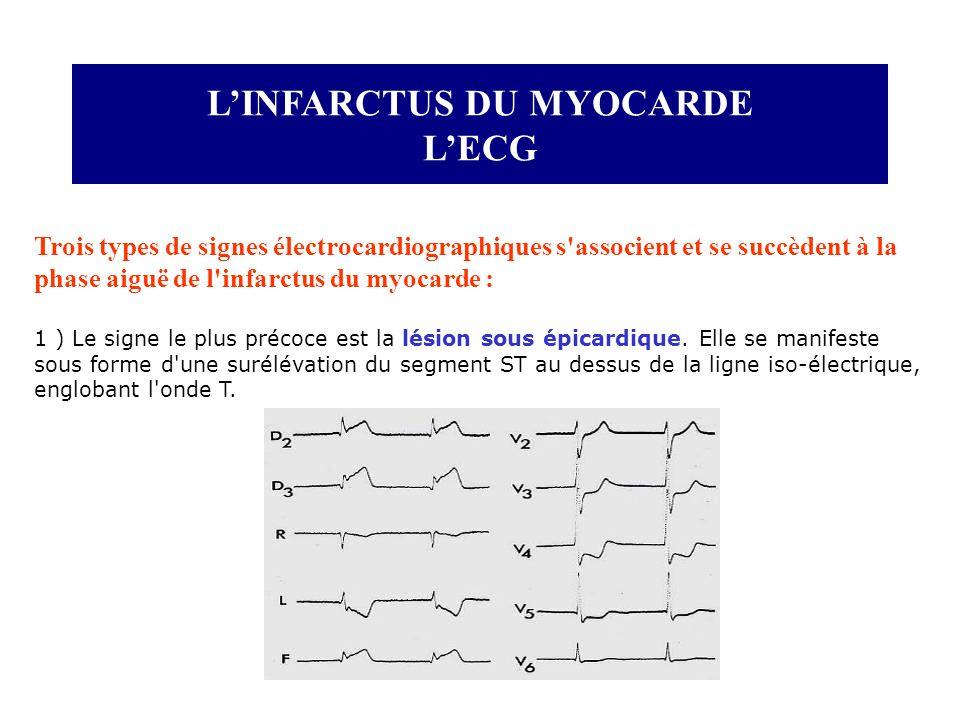 LINFARCTUS DU MYOCARDE LECG Trois types de signes électrocardiographiques s'associent et se succèdent à la phase aiguë de l'infarctus du myocarde : 1