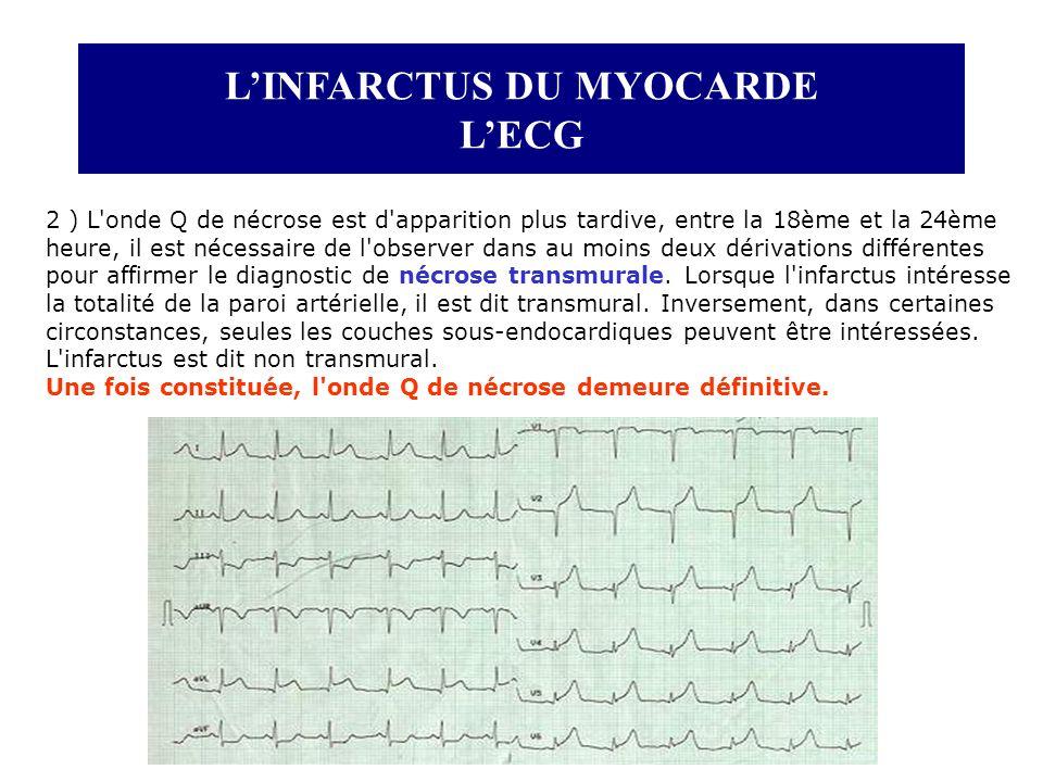 LINFARCTUS DU MYOCARDE LECG 2 ) L'onde Q de nécrose est d'apparition plus tardive, entre la 18ème et la 24ème heure, il est nécessaire de l'observer d