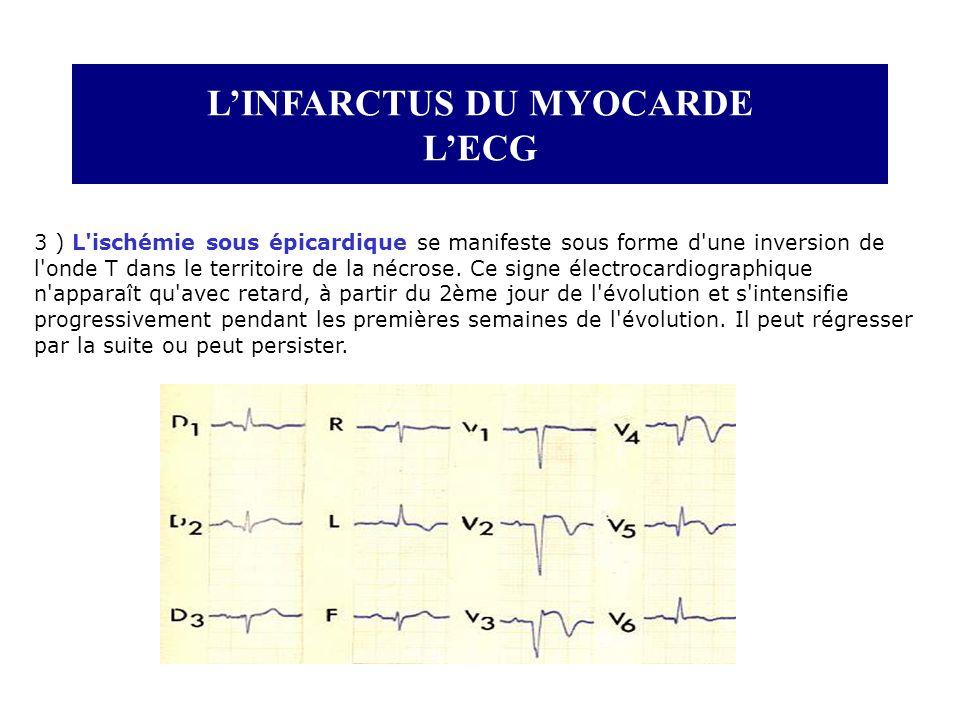 LINFARCTUS DU MYOCARDE LECG 3 ) L'ischémie sous épicardique se manifeste sous forme d'une inversion de l'onde T dans le territoire de la nécrose. Ce s