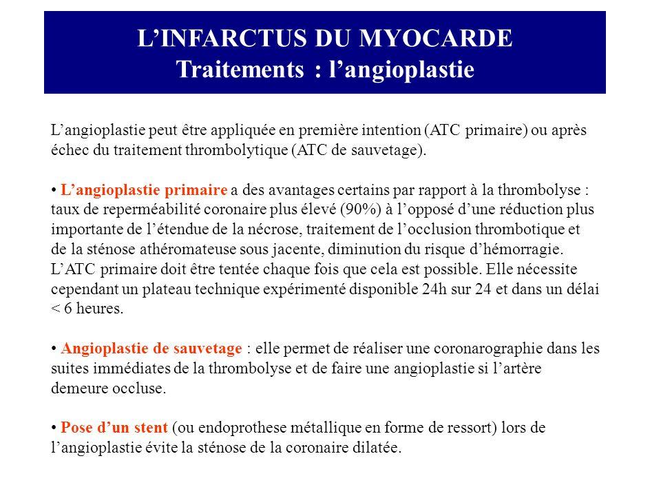 LINFARCTUS DU MYOCARDE Traitements : langioplastie Langioplastie peut être appliquée en première intention (ATC primaire) ou après échec du traitement