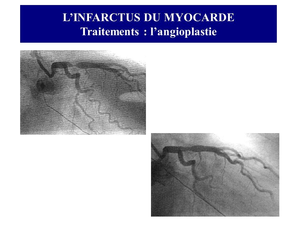 LINFARCTUS DU MYOCARDE Traitements : langioplastie