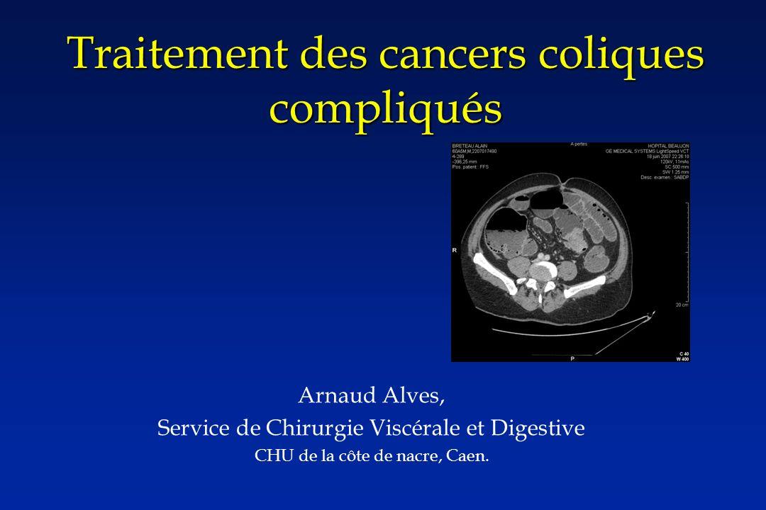 Traitement des cancers coliques compliqués Arnaud Alves, Service de Chirurgie Viscérale et Digestive CHU de la côte de nacre, Caen.