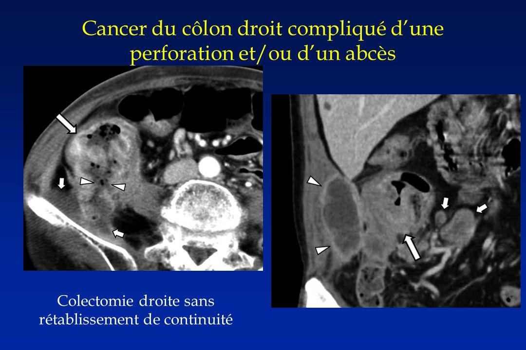 Cancer du côlon droit compliqué dune perforation et/ou dun abcès Colectomie droite sans rétablissement de continuité