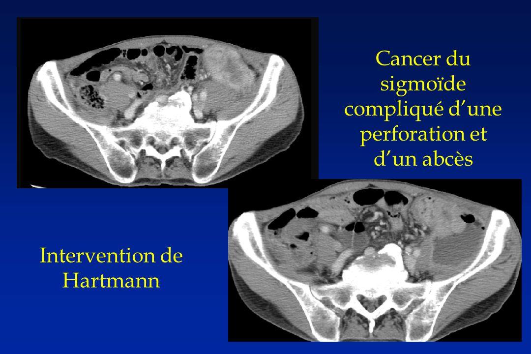 Cancer du sigmoïde compliqué dune perforation et dun abcès Intervention de Hartmann