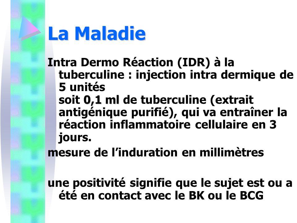 La Maladie 0,1 ml Intra Dermo Réaction (IDR) à la tuberculine : injection intra dermique de 5 unités soit 0,1 ml de tuberculine (extrait antigénique purifié), qui va entraîner la réaction inflammatoire cellulaire en 3 jours.