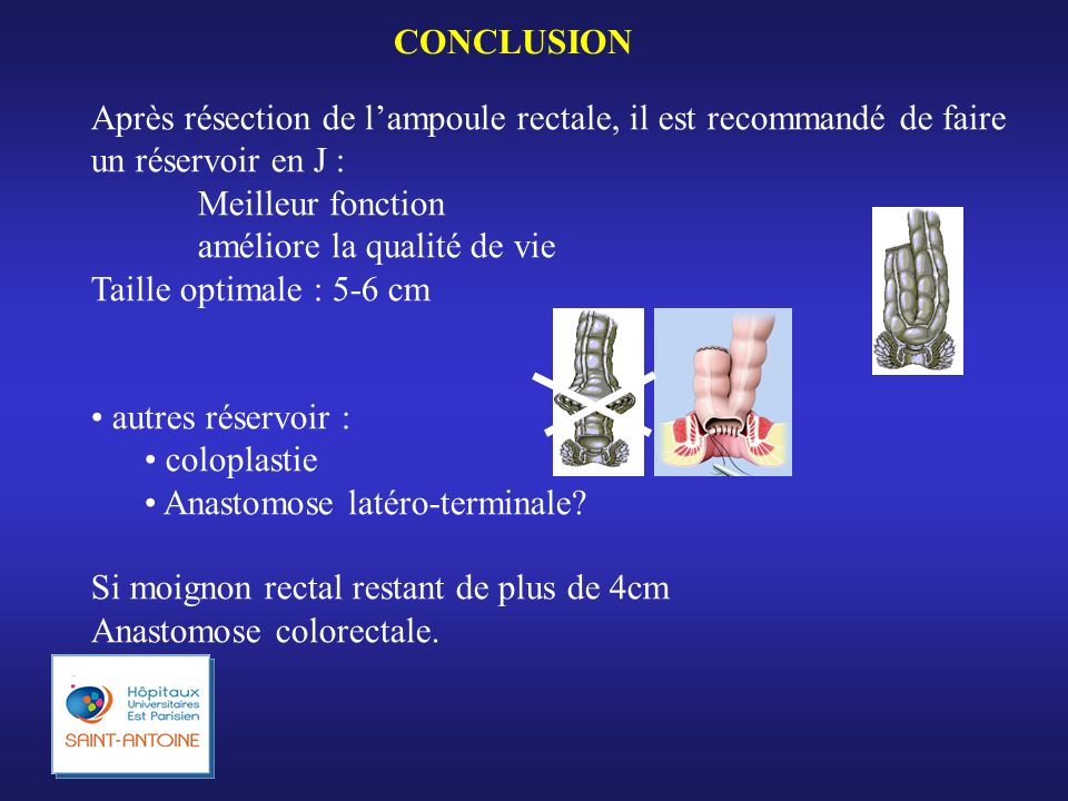 CONCLUSION Après résection de lampoule rectale, il est recommandé de faire un réservoir en J : Meilleur fonction améliore la qualité de vie Taille opt