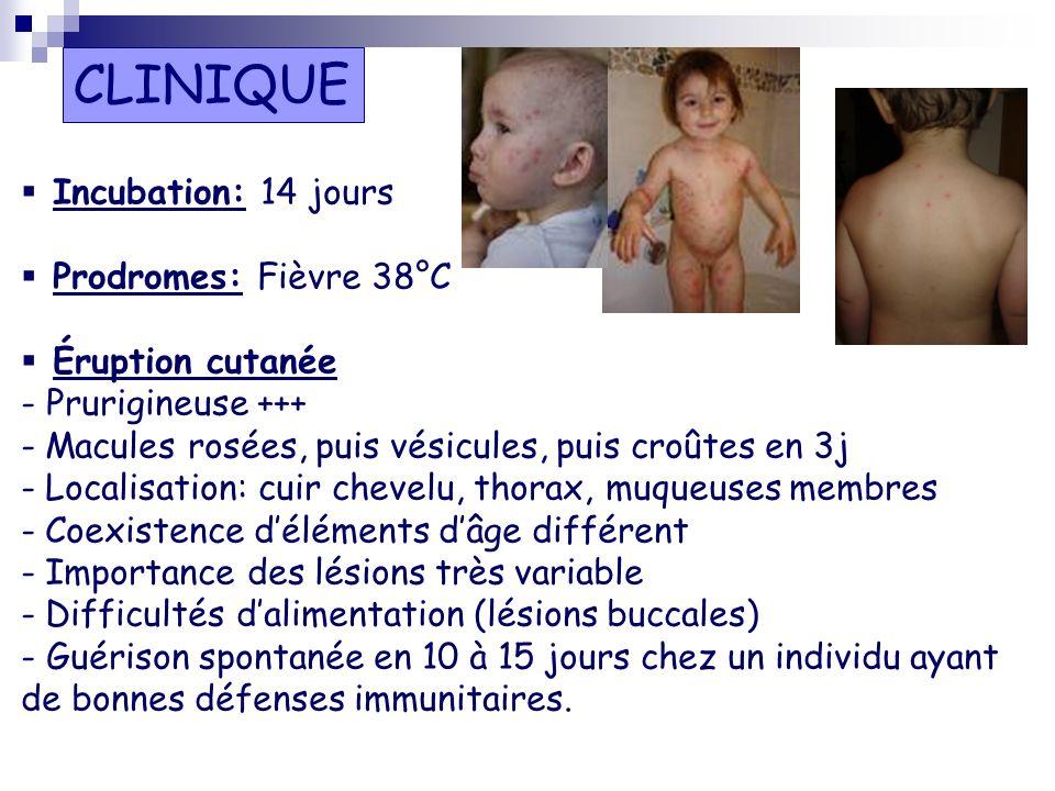 Incubation: 14 jours Prodromes: Fièvre 38°C Éruption cutanée - Prurigineuse +++ - Macules rosées, puis vésicules, puis croûtes en 3j - Localisation: c