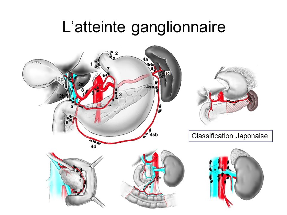 Latteinte ganglionnaire Classification Japonaise