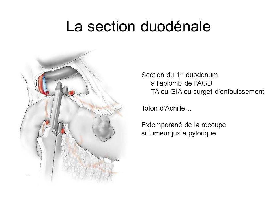 La section duodénale Section du 1 er duodénum à laplomb de lAGD TA ou GIA ou surget denfouissement Talon dAchille… Extemporané de la recoupe si tumeur