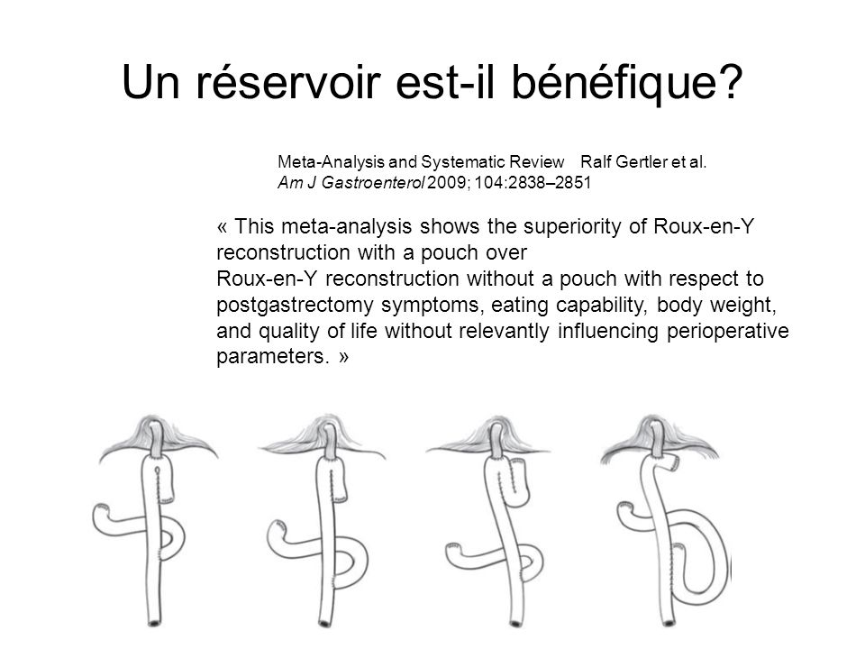 Un réservoir est-il bénéfique? « This meta-analysis shows the superiority of Roux-en-Y reconstruction with a pouch over Roux-en-Y reconstruction witho