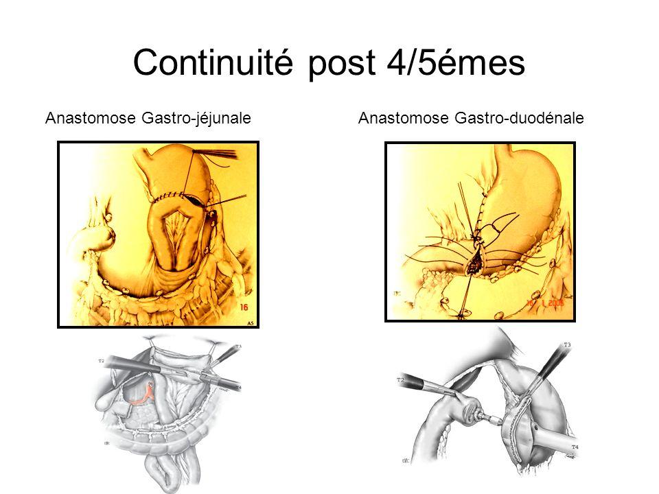 Continuité post 4/5émes Anastomose Gastro-jéjunaleAnastomose Gastro-duodénale