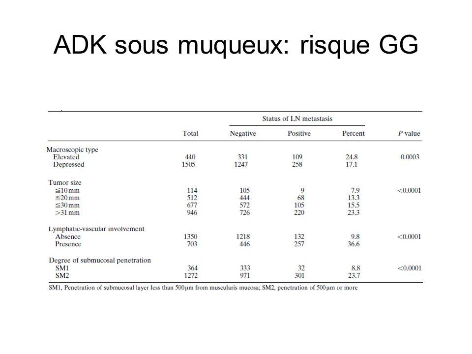 ADK sous muqueux: risque GG