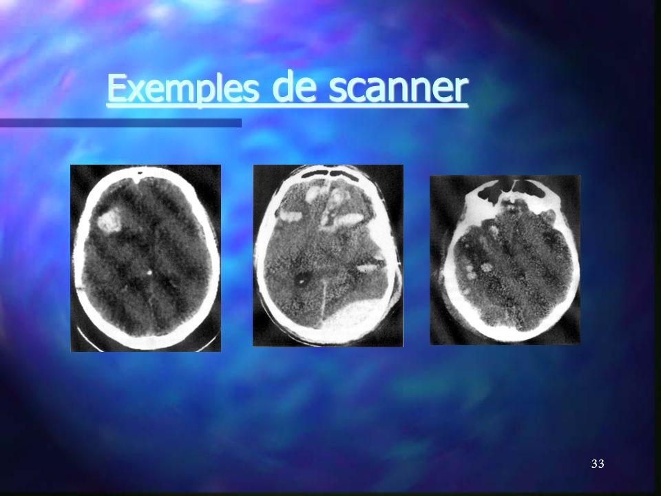 32 Examens complémentaires Scanner cérébral sans injection +++. Scanner cérébral sans injection +++. Fenêtre parenchymateuse et osseuse. Fenêtre paren