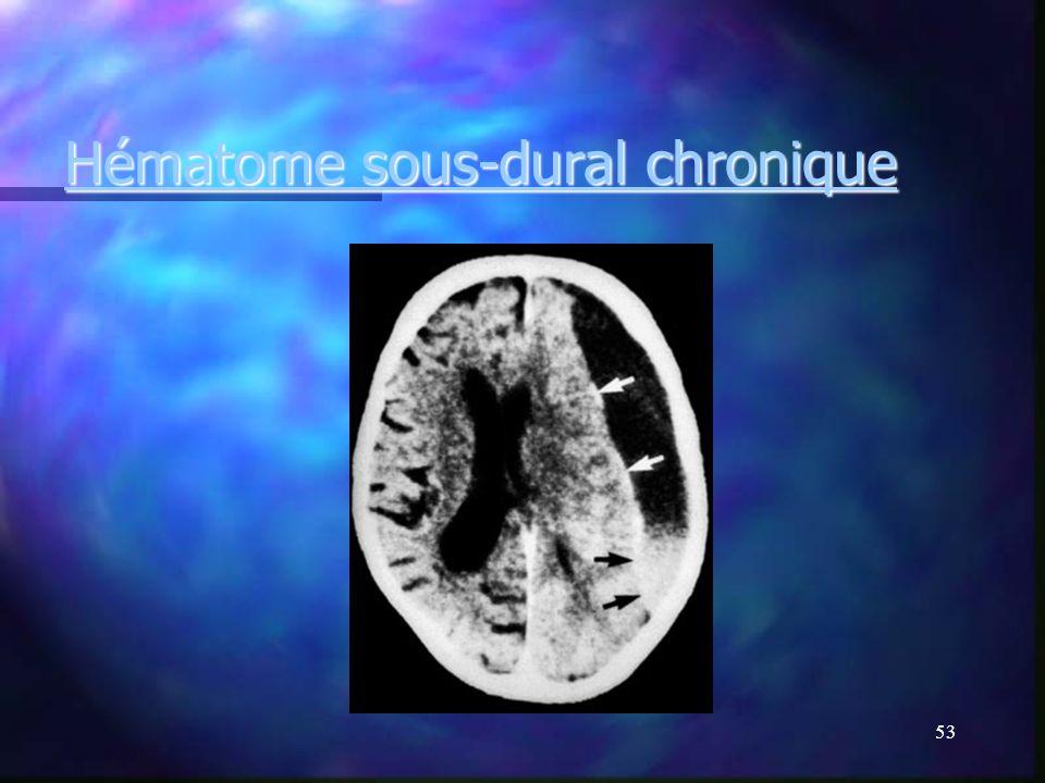 52 Hématome sous-dural chronique Saignement lent,à bas bruit. Saignement lent,à bas bruit. Traumatisme crânien ancien pouvant dater de plusieurs mois.