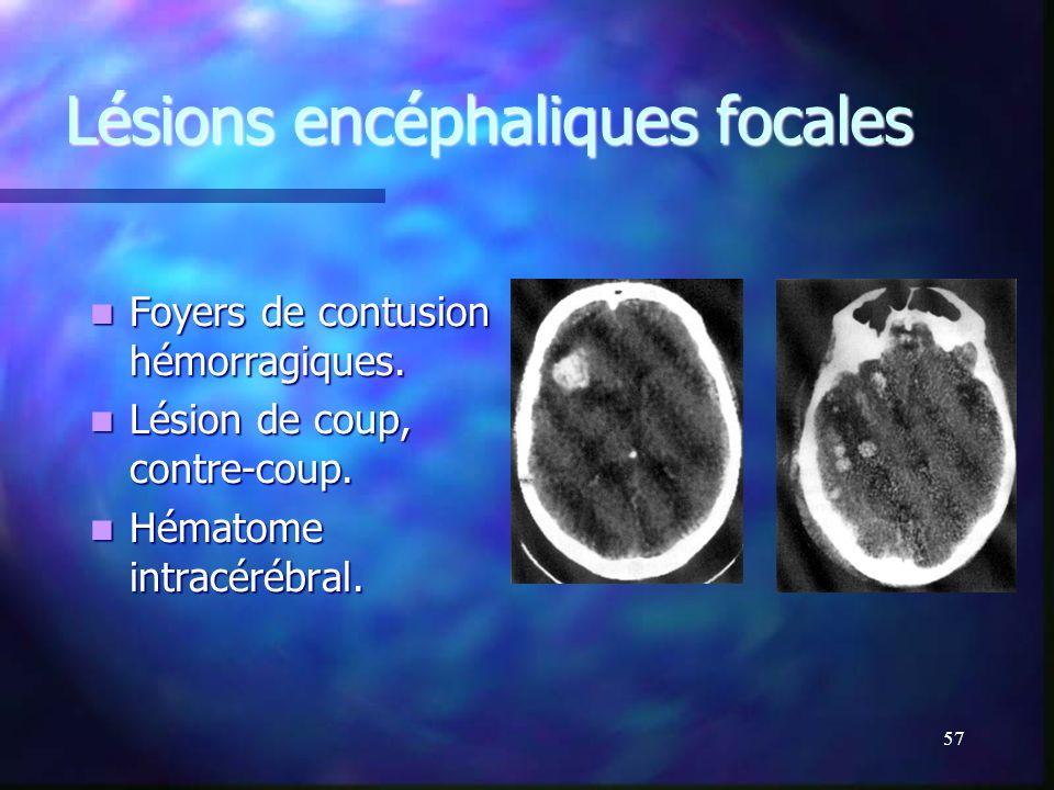 56 Scanner : Hydrocéphalie