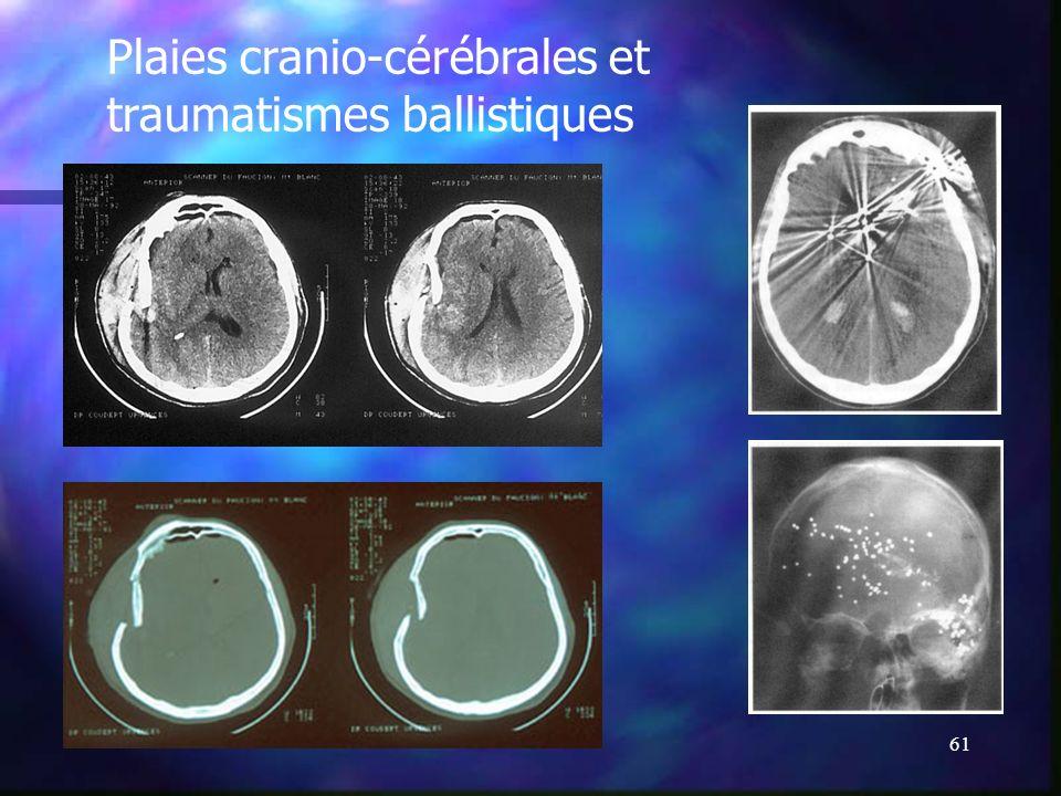 60 Autres lésions encéphaliques Plaies crânio-cérébrales. Plaies crânio-cérébrales. Traitement chirurgical : Suture plan par plan. Traitement chirurgi