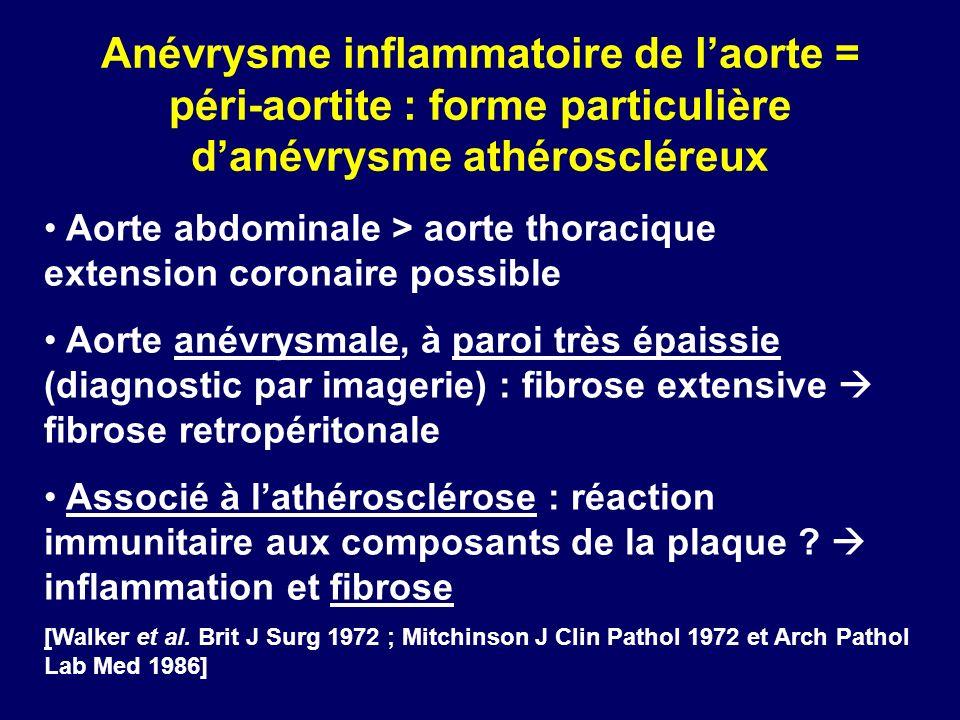 Anévrysme inflammatoire de laorte = péri-aortite : forme particulière danévrysme athéroscléreux Aorte abdominale > aorte thoracique extension coronair