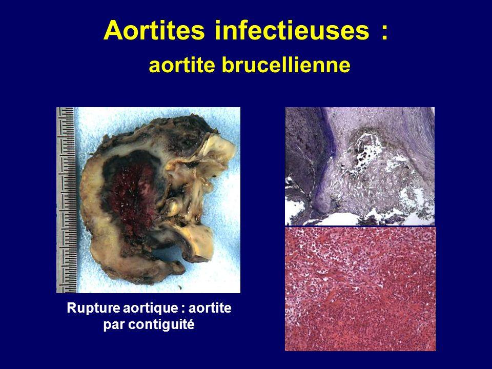 Aortites infectieuses : aortite brucellienne Rupture aortique : aortite par contiguité